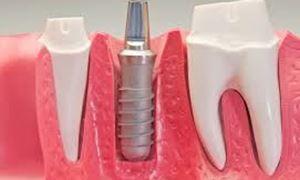 موضوع دندانپزشکی: ایمپلنت و  All on four ...همراه با دکتر مهرداد ابولقاسمی