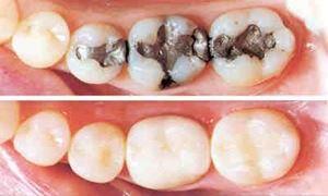 موضوع دندانپزشکی: پاسخ به سوالات ..چرا پر کردگی دندان خالی میشود ؟ ..همراه با دکتر مهرداد ابولقاسمی